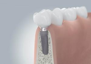 Ein Implantat sitzt wie ein eigener Zahn sicher und fest im Kieferknochen