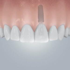Bei Implantatversorgungen müssen gesunde Nachbarzähne nicht beschliffen werden