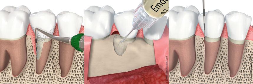 Vor dem Knochenaufbau wird die Zahnfleischtasche vermessen (links). Anschließend regt das Knochenaufbau-Material den eigenen Knochen zur Knochenneubildung an (mittig). Der neugebildete Knochen verringert die Zahnfleischtasche und hält den Zahn wieder fest (rechts). Grafik: © Institut Straumann AG, 2015. Alle Rechte vorbehalten. Mit freundlicher Genehmigung der Institut Straumann AG.