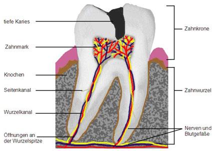 Zähne mit Karies bis zum Zahnnerven können durch moderne Wurzelkanalbehandlungen zuverlässig gerettet werden